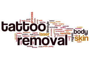 tattoo-removal-words